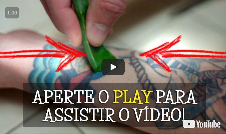 remover tatuagem definitiva natural
