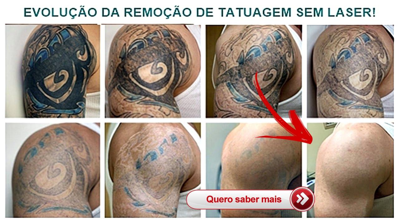 """Como Remover Tatuagem Definitiva Sem Dor e Sem Laser """"Passo a Passo"""""""